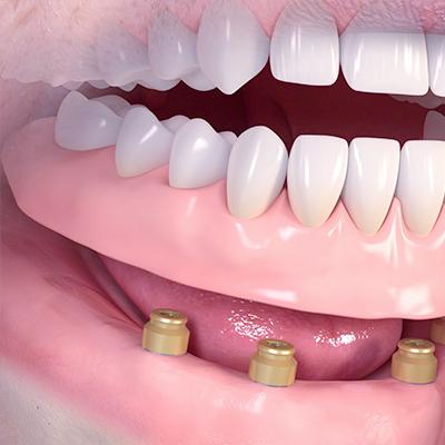 Zahnersatz und Prothetik
